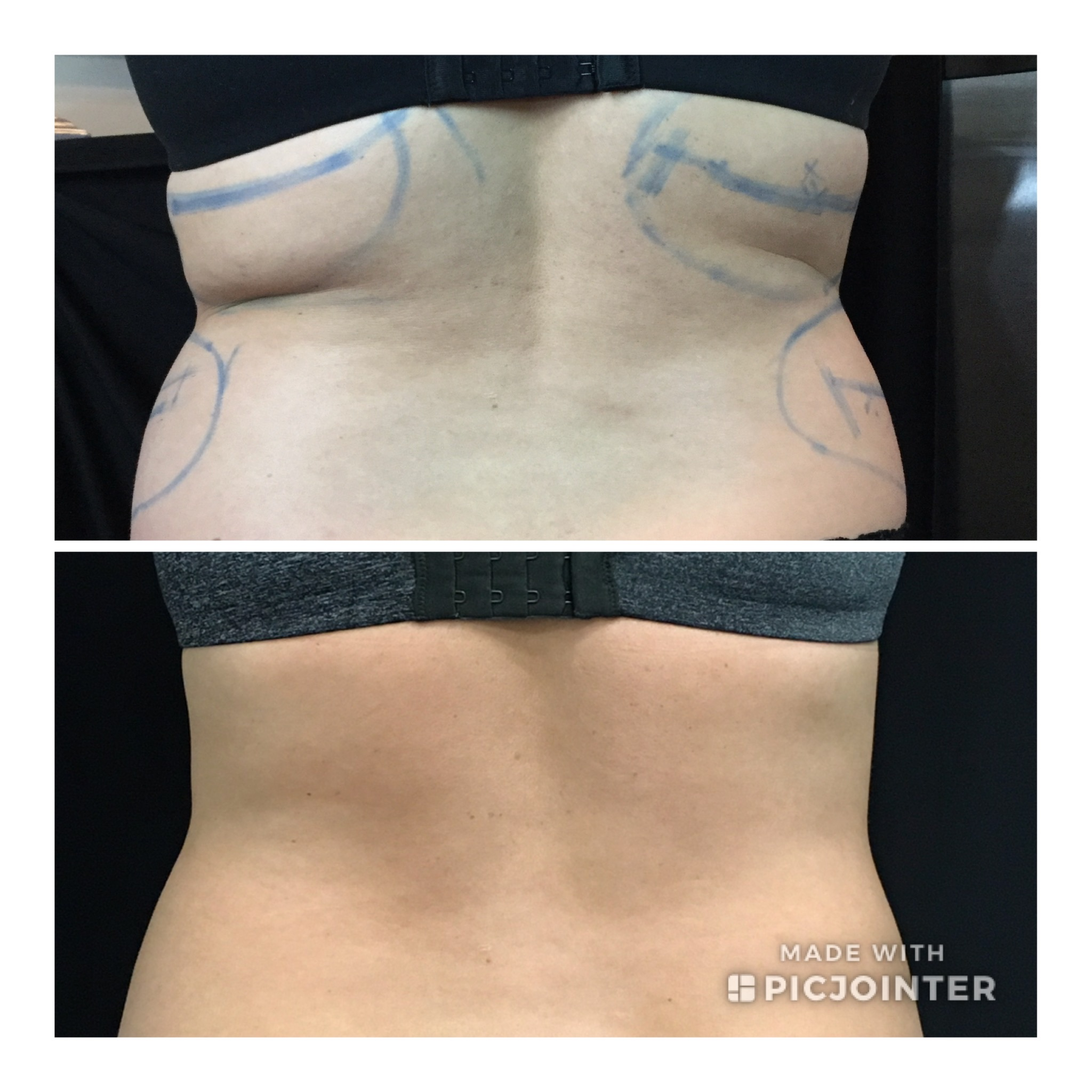 Coolsculpting before and after fat freezing reduction elimination Bobbi Bullock Medical Esthetics Boise