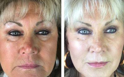 The Bobbi Bullock Medical Esthetics 45 Minute Miracle Medspa Facelift