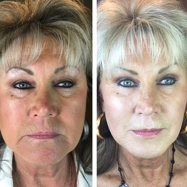 The Bobbi Bullock Medical Esthetics 45 Minute Miracle Medspa Facelift