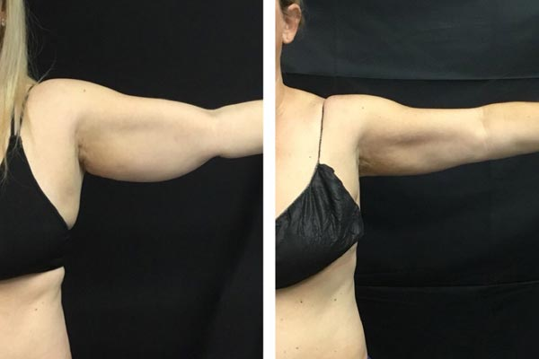 CoolSculpting Before After Photo of underarms