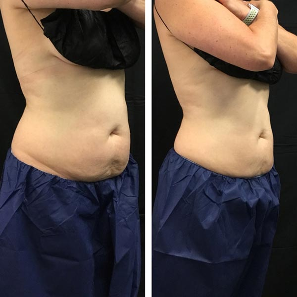 Coolsculpting before and after of stomach