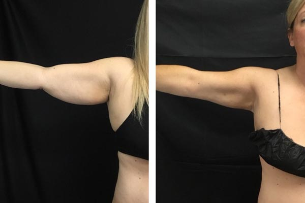CoolSculpting Under arms before and after photo