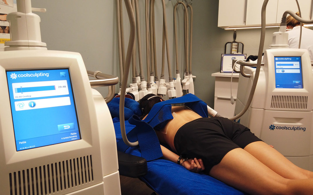 Should you lose weight before CoolSculpting?