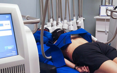 What is the CoolSculpting® Experience at BB Medical Esthetics?